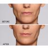 Restylane® Defyne Before & After